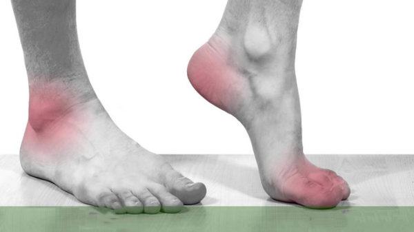 Bệnh Gout: Tổng hợp những thông tin cần biết
